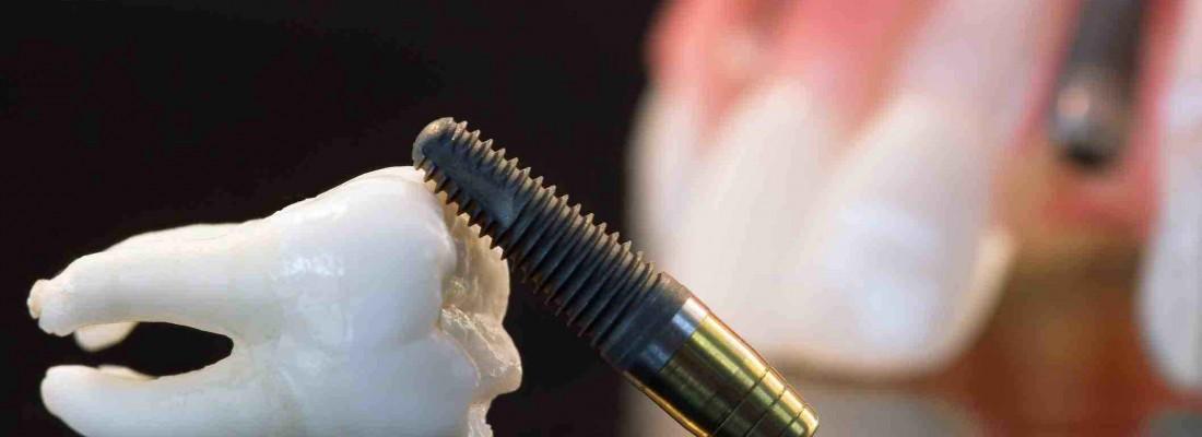 La-importancia-de-utilizar-aditamentos-de-calidad-para-implantes-dentales.